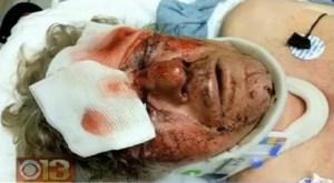 richard fletcher beaten by baltimore teens