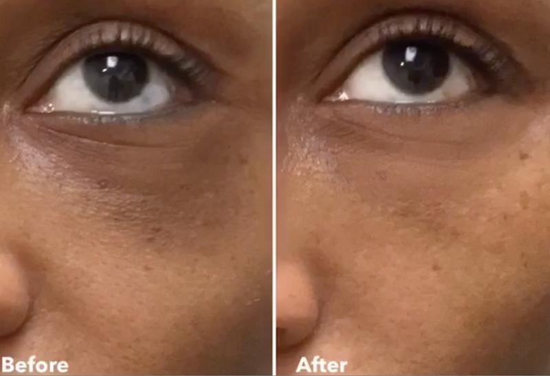 Cynthia Bailey eye fillers