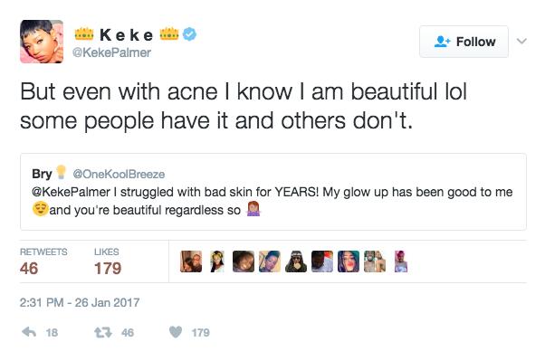 Keke Palmer acne